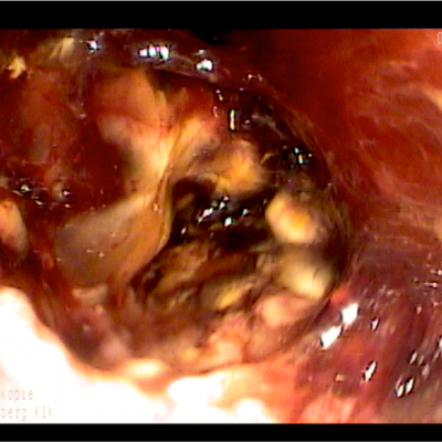 Clostridien Colitis Abb.1
