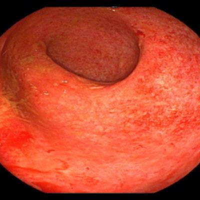 Abb. 1: floride Colitis ulzerosa vor Therapie