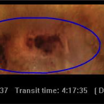 Morbus Crohn Abb_2